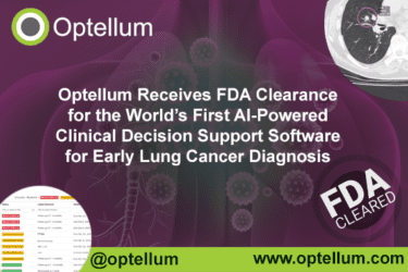 Read more about the article US PRESS RELEASE: Optellum Receives FDA Clearance for the World's First AI-Powered Clinical Decision Support Software for Early Lung Cancer Diagnosis