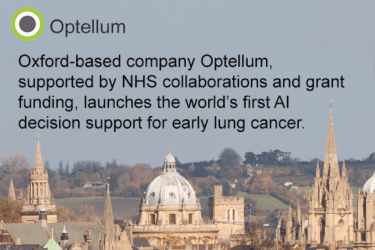 Read more about the article PRESS RELEASE: UK health tech company, goes global with breakthrough in early lung cancer diagnosis AI technology