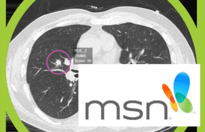 Read more about the article AI breakthrough could speed up lung cancer diagnosis – and save the NHS millions