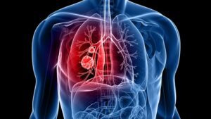 Read more about the article Optellum Joins J&J's Lung Cancer Initiative